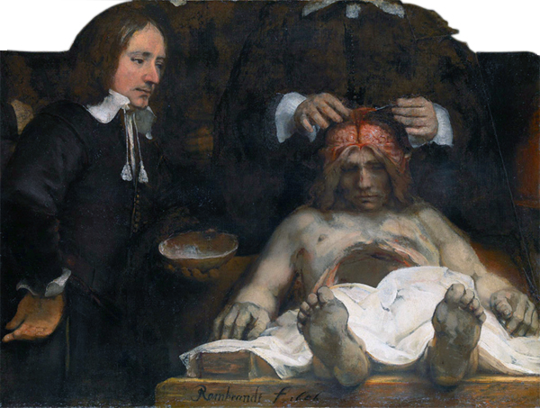 Dr. Deijman's Anatomy Lesson (fragment) *oil on panel  *100 x 134 cm  *inscribed b.c.: Rembrandt f 1656